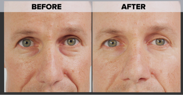 Derma Max Before and After