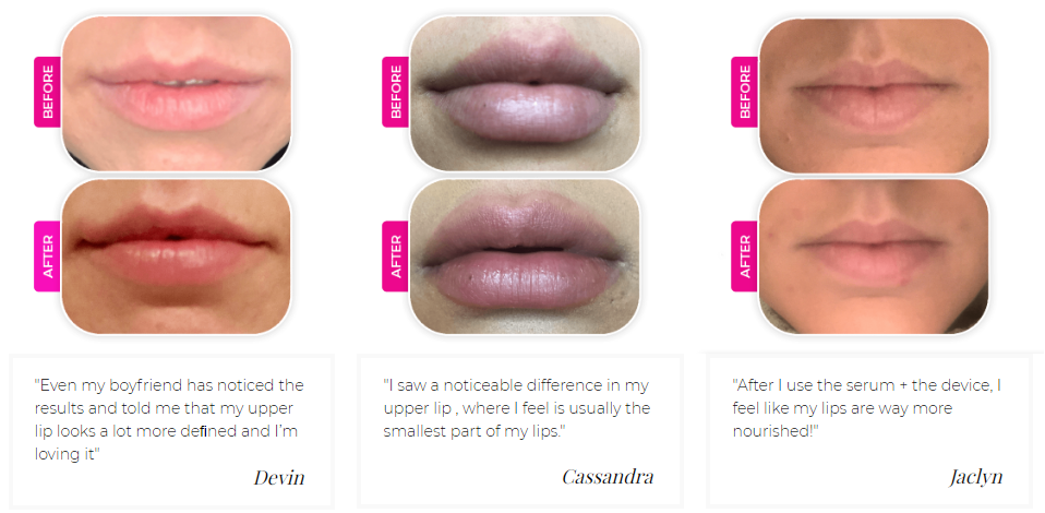LipStim Before and After