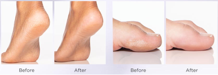 Flawless Pedi Before & After